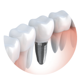 button for circle implants South Valley Oral Surgery