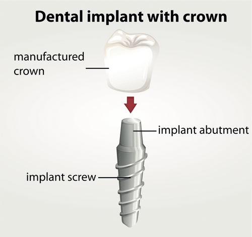 How Dental Implants Can Improve Your Jaw Health