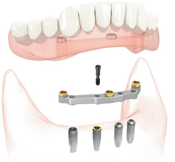 Rendered image of bar attachment dentures from South Valley Oral and Facial Surgery in CA